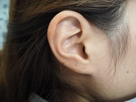 耳つぼにシールを貼る方法でダイエットの意識づけ